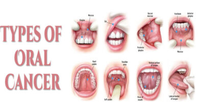 Photo of No Oral Cancer Treatment Facility In Major Sindh Hospitals: Report